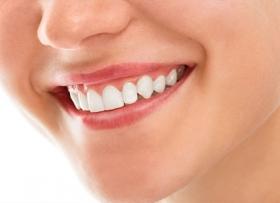 Цена отбеливания зубов в Красноярске