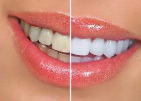 Почему Ваши зубы желтеют