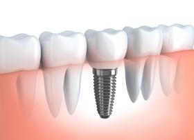 От чего зависит цена на имплант зуба?