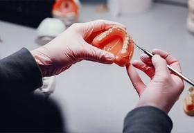 Виды и цены имплантов зубов
