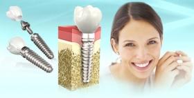 Все ли установленные зубные импланты приживаются?