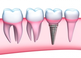 Импланты зубов: виды и цены в Красноярске