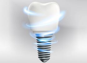 Имплантация с моментальной нагрузкой – выбор стоматолога