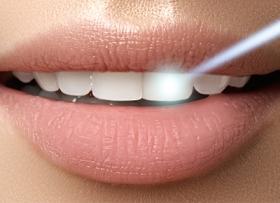 Процедуры с использованием лазера в стоматологии Mira