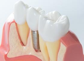 Как вернуть зубы: виды протезов и нюансы процедуры