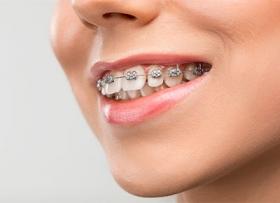 Секрет ровных зубов: виды брекетов и их стоимость