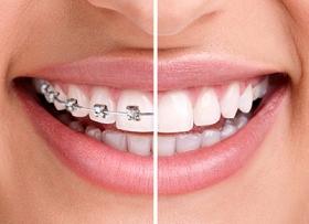 Виды и методы ортодонтического лечения