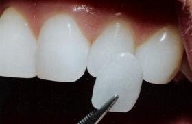 Все о зубных винирах