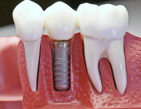 зубные виниры красноярск цена